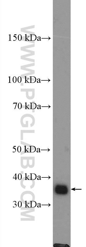 DNAJB4 Polyclonal antibody