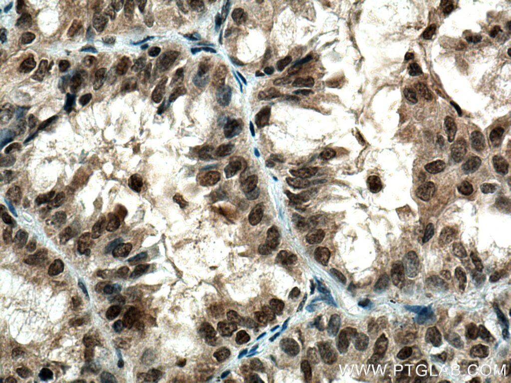 IHC staining of human lung cancer using 24206-1-AP