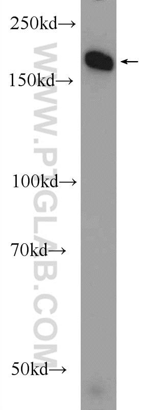 WB analysis of HEK-293 using 24206-1-AP