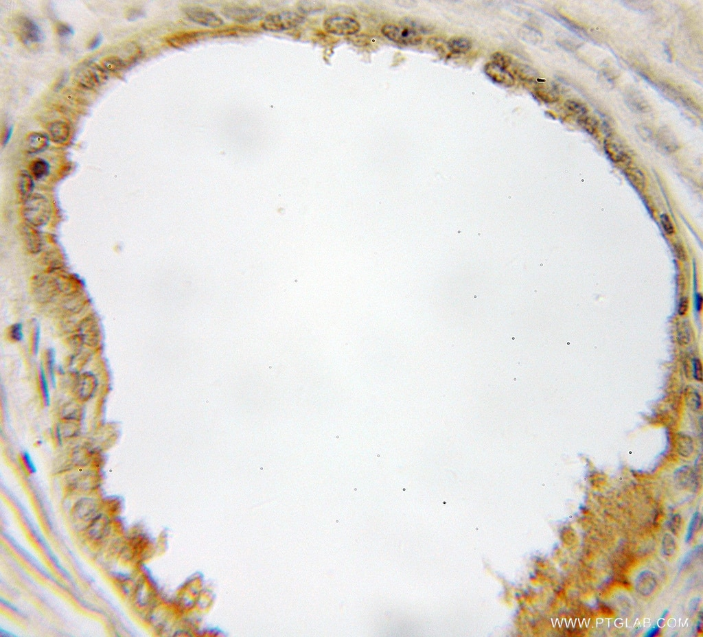 IHC staining of human prostate cancer using 10940-1-AP