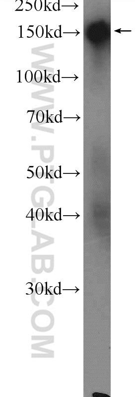 DSG4 Polyclonal antibody