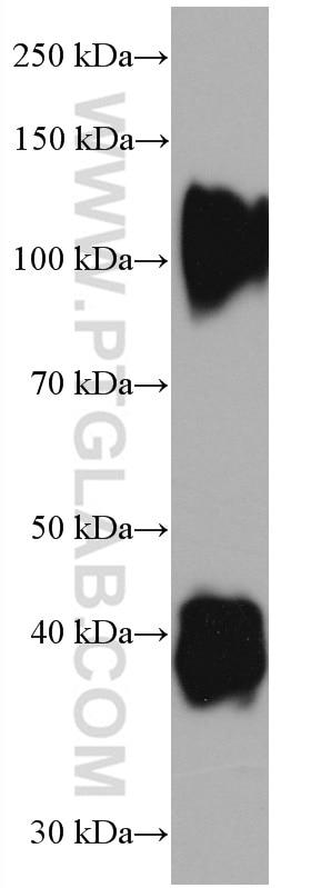 WB analysis of pig cartilage using 66847-1-Ig