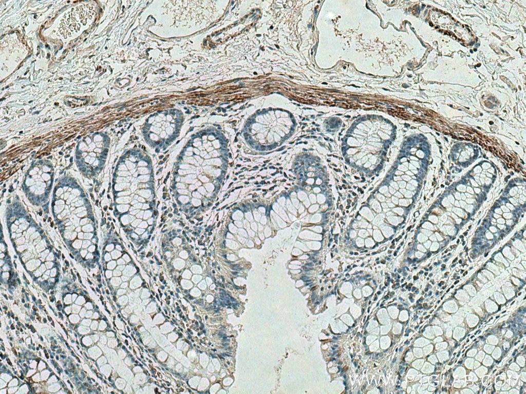 IHC staining of human colon using 67793-1-Ig