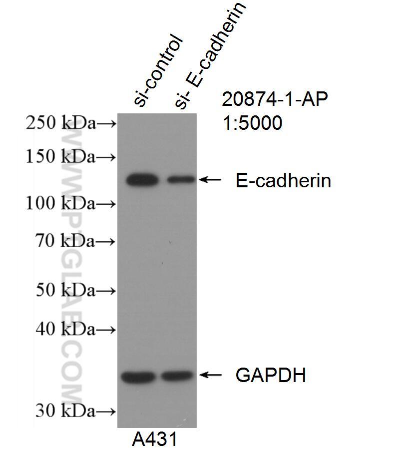 WB analysis of A431 using 20874-1-AP