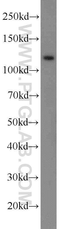 E-cadherin Polyclonal antibody