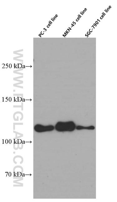 WB analysis of PC-3 using 60335-1-Ig