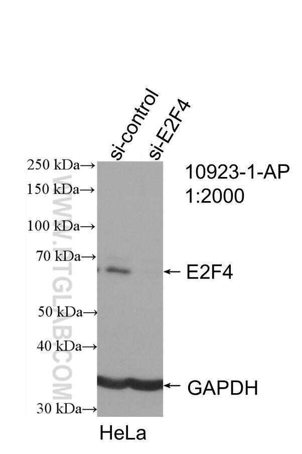 WB analysis of HeLa using 10923-1-AP