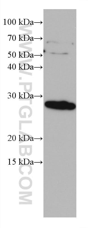 WB analysis of human placenta using 67008-1-Ig
