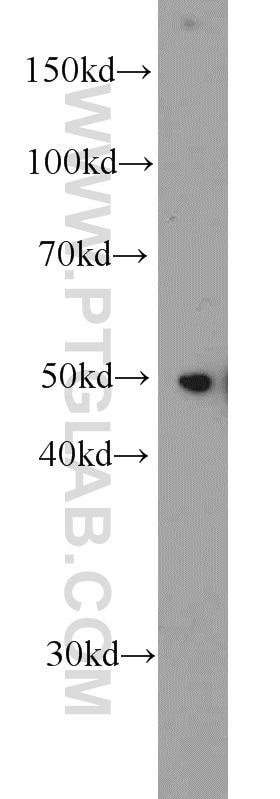 WB analysis of HepG2 using 11402-1-AP