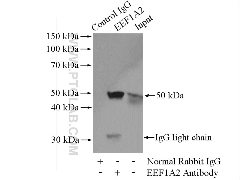 IP experiment of mouse brain using 16091-1-AP