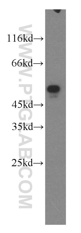 WB analysis of MCF-7 using 16091-1-AP