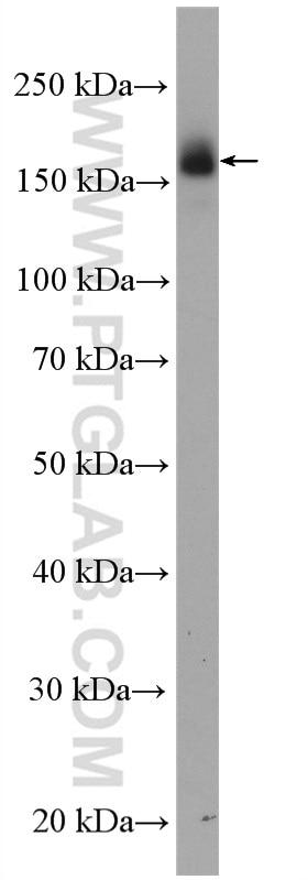 WB analysis of A431 using 51071-2-AP
