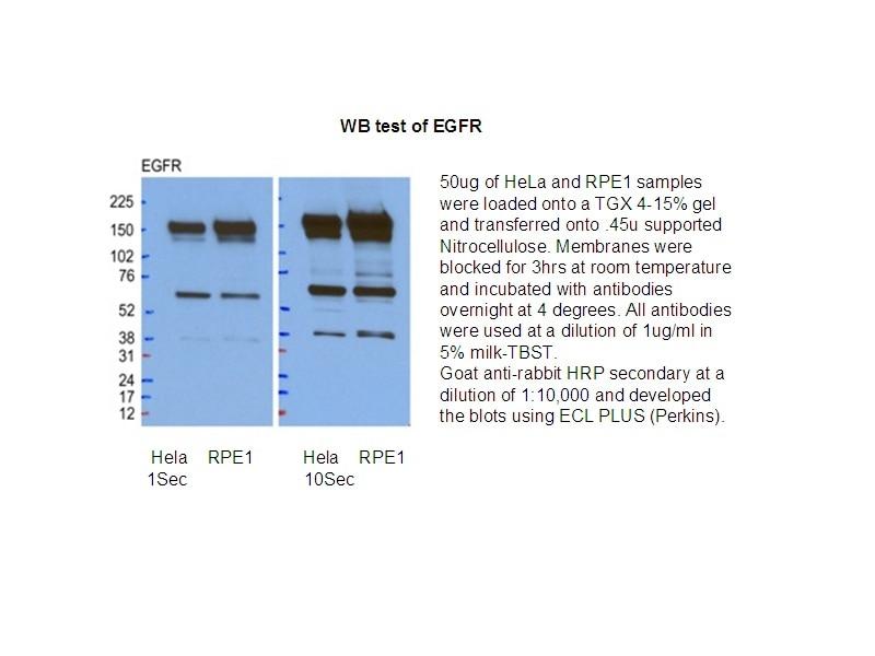 WB analysis of HeLa/RPE1 cells using 18986-1-AP