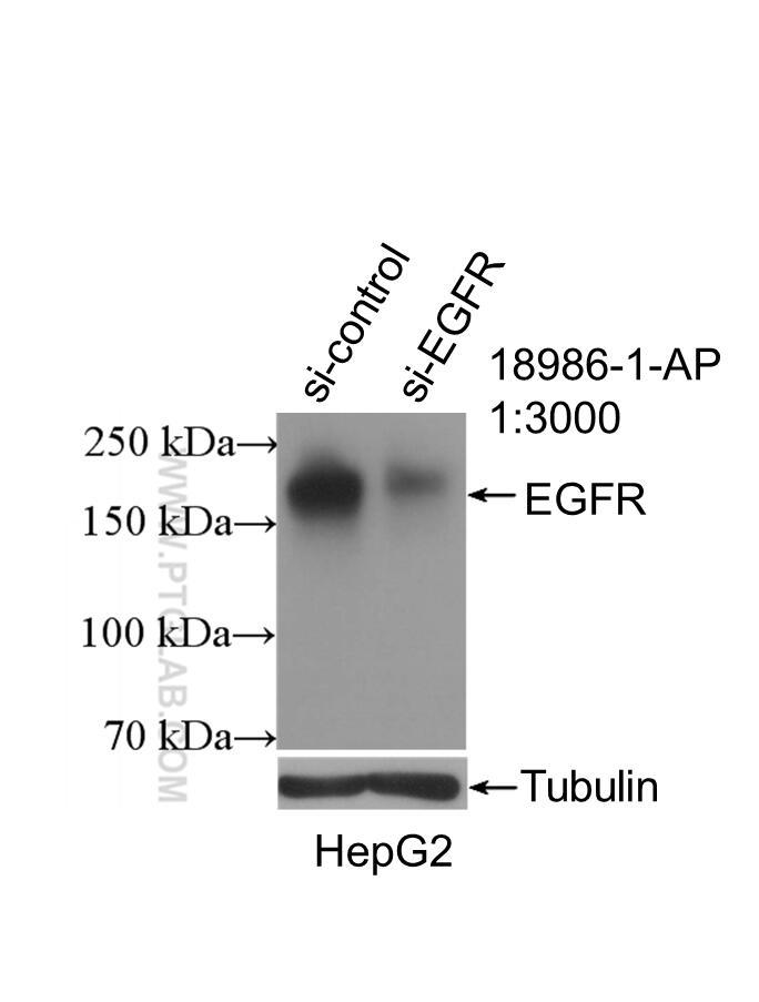 WB analysis of HepG2 using 18986-1-AP