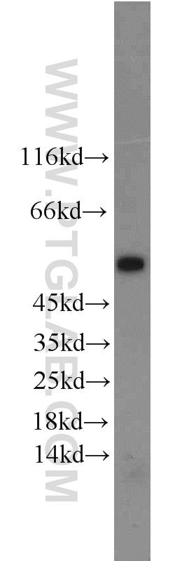WB analysis of mouse testis using 12984-1-AP