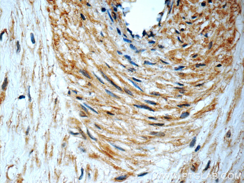 IHC staining of paraffin-embedded human placenta slide using PERK antibody (24390-1-AP) at a dilution of 1:50