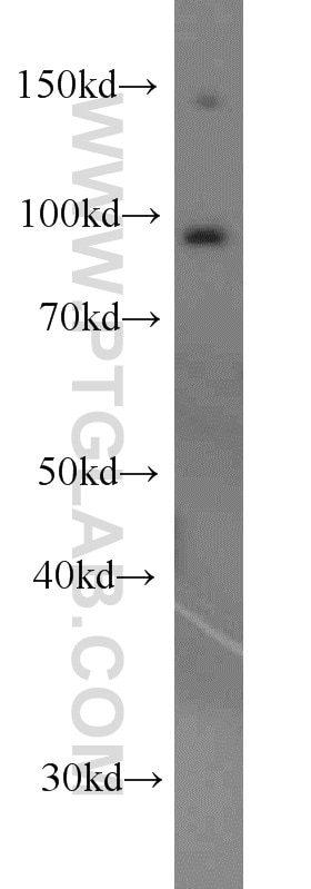 EIF2C1-Specific