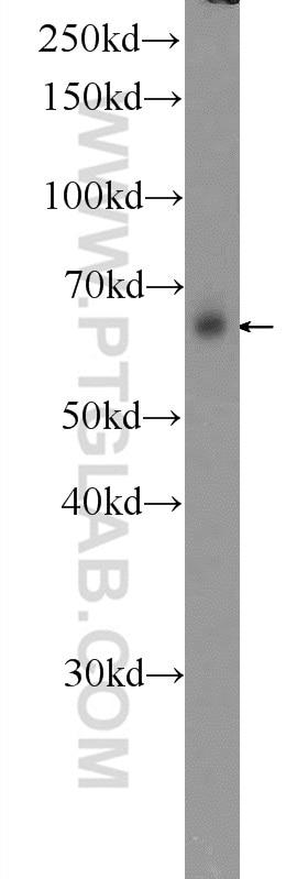 WB analysis of HeLa using 13946-1-AP