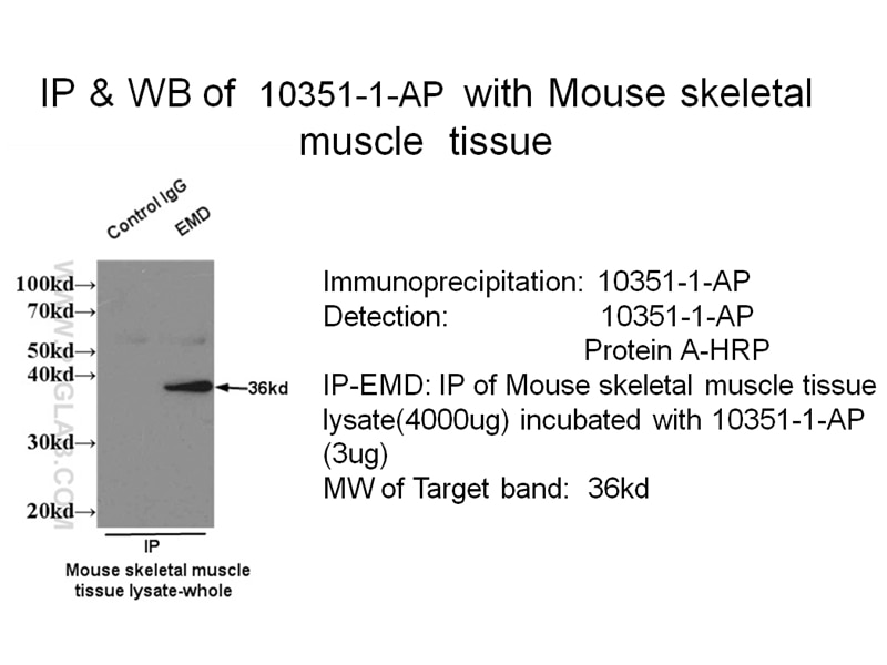 IP experiment of mouse skeletal muscle tissue using 10351-1-AP