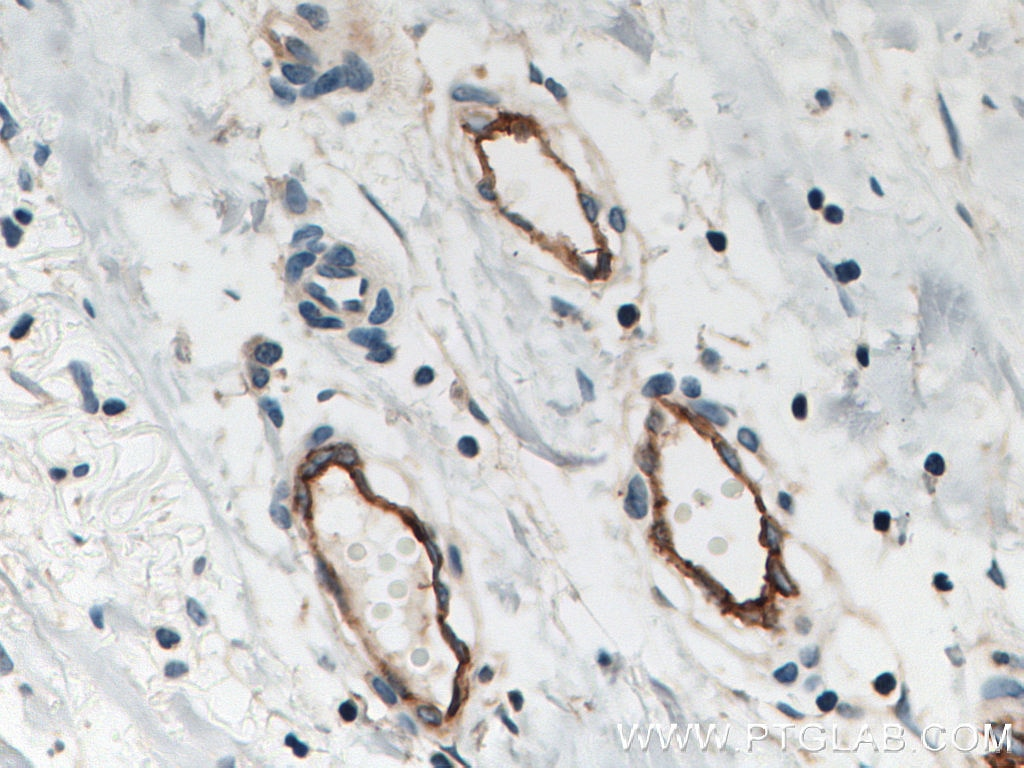 IHC staining of human breast cancer using 10862-1-AP