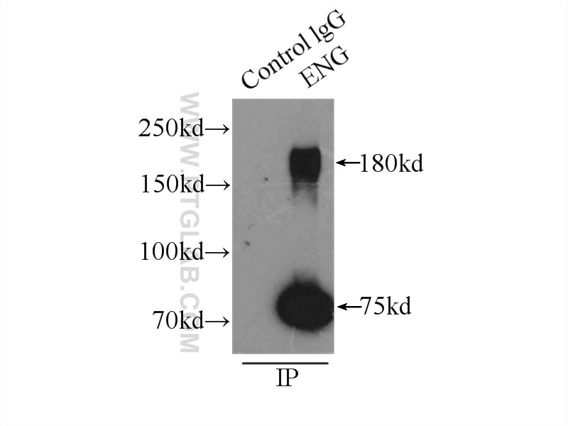 IP experiment of mouse lung using 10862-1-AP