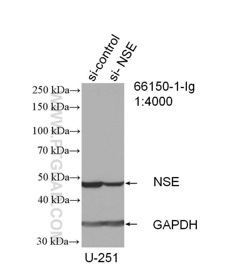 WB analysis of U-251 using 66150-1-Ig
