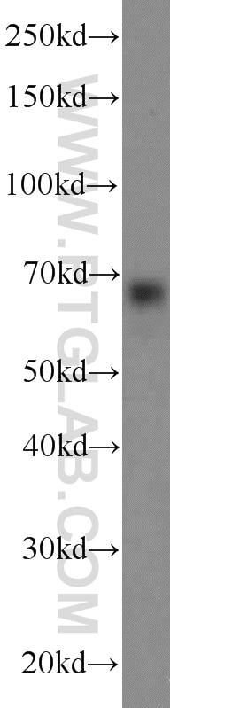 10423-1-AP;HeLa cells