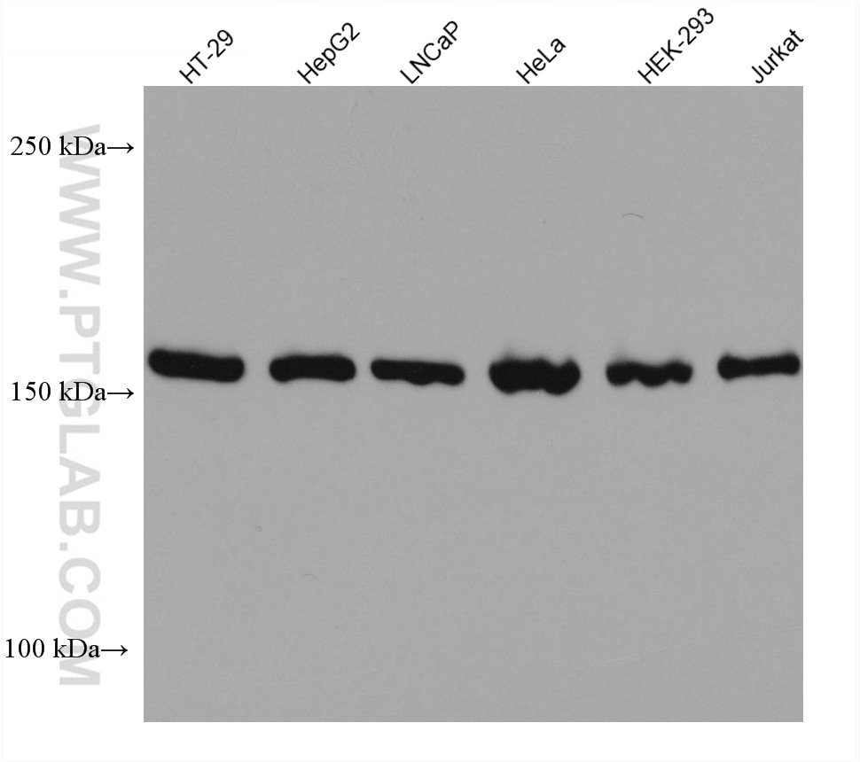 WB analysis using 67712-1-Ig