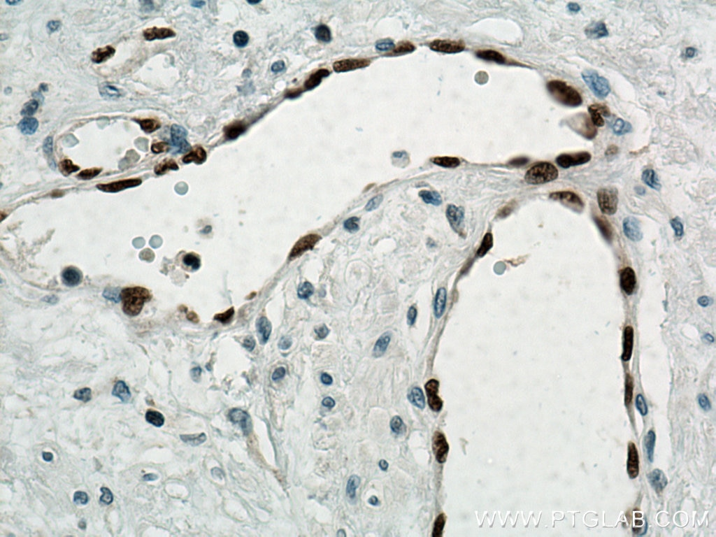 IHC staining of human prostate cancer using 14356-1-AP