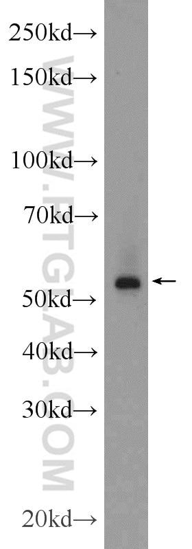 WB analysis of MCF-7 using 14356-1-AP