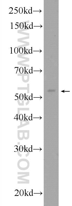 12007-1-AP;A431 cells