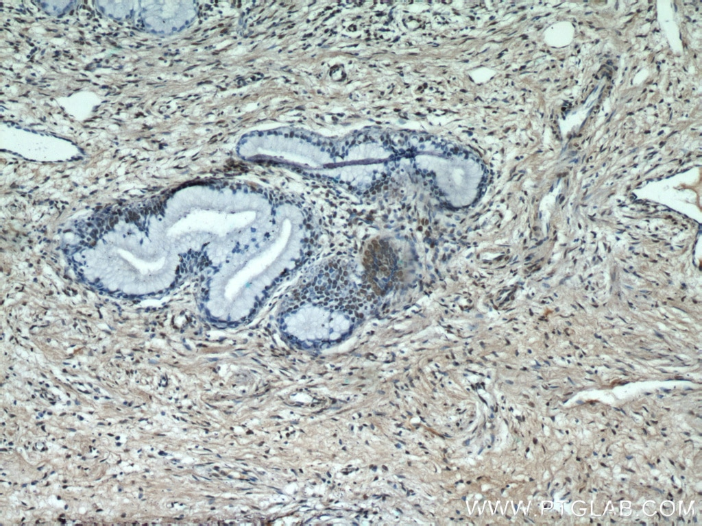 IHC staining of human cervix using 55441-1-AP