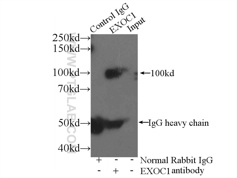 IP experiment of mouse brain using 11690-1-AP