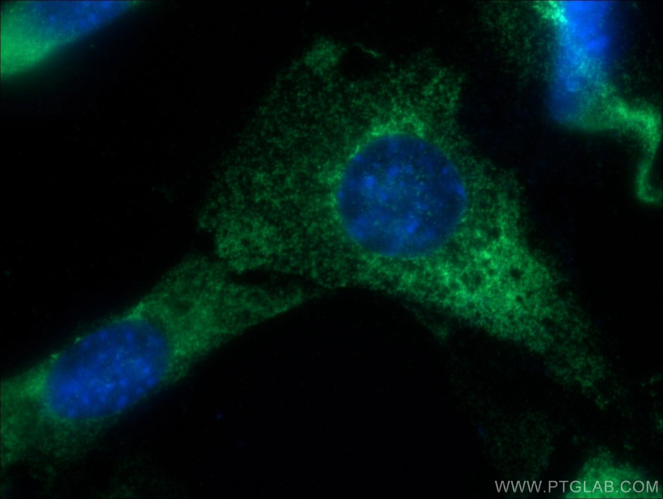 IF Staining of NIH/3T3 using 11178-1-AP