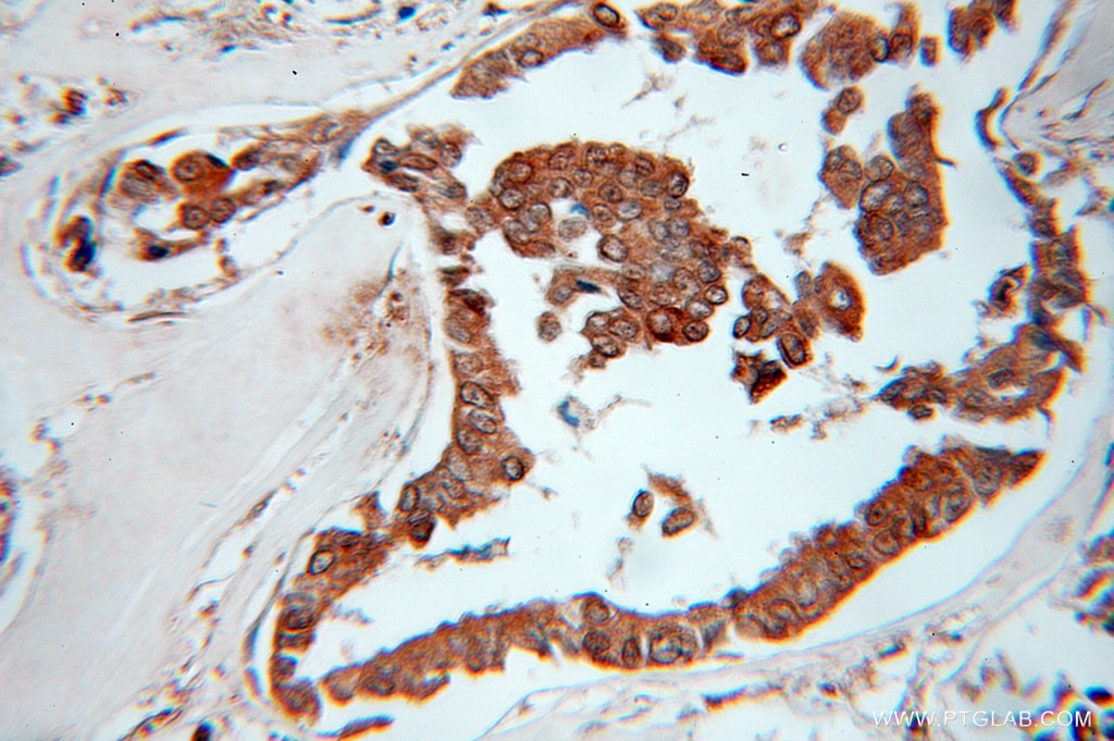 IHC staining of human breast cancer using 11178-1-AP