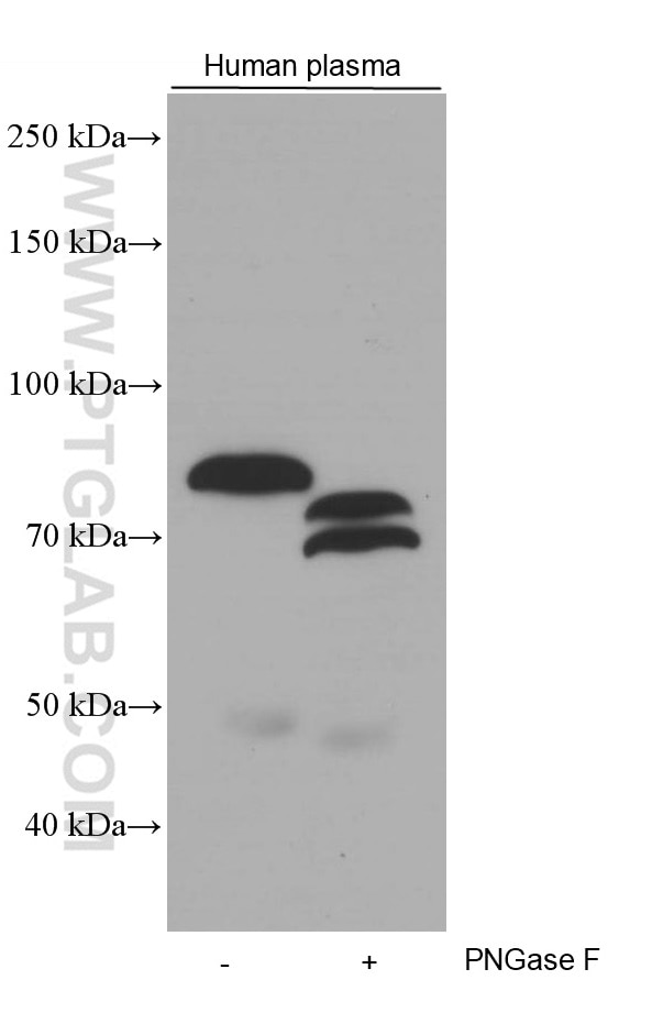 WB analysis of human plasma using 66509-1-Ig