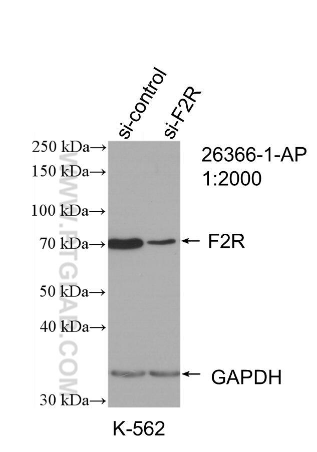 WB analysis of K-562 using 26366-1-AP