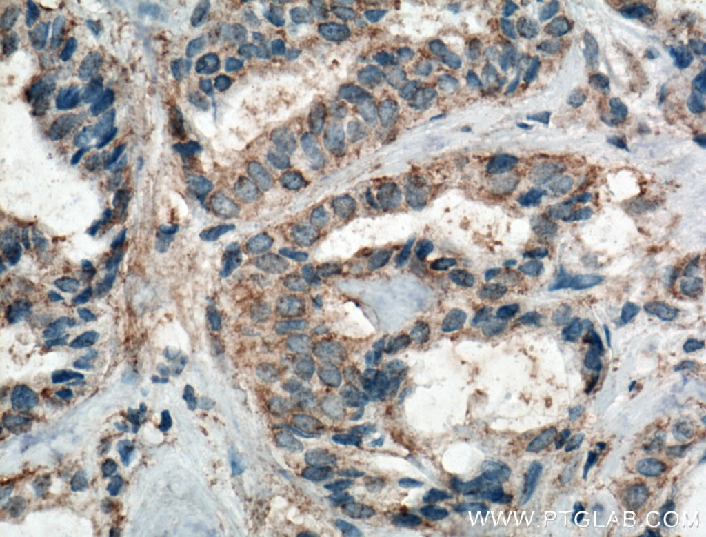 IHC staining of human breast cancer using 66258-1-Ig