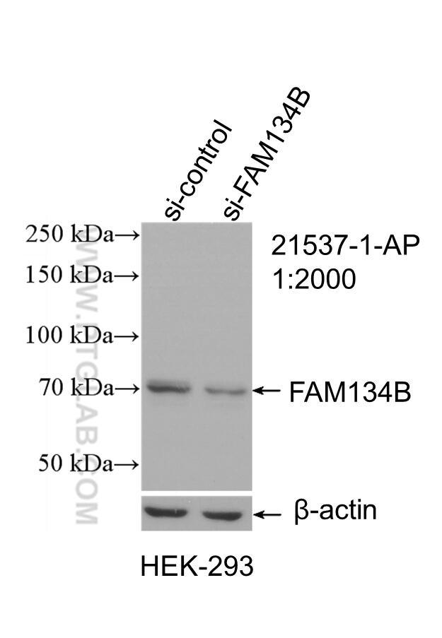 WB analysis of HEK-293 using 21537-1-AP