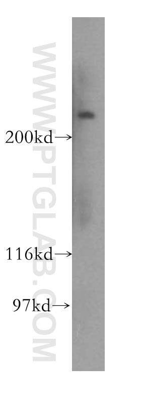 WB analysis of HepG2 using 15939-1-AP