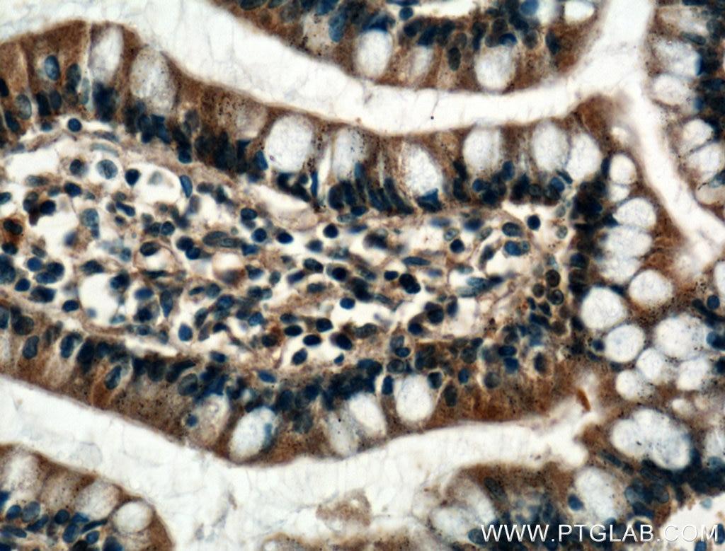IHC staining of human small intestine using 25192-1-AP