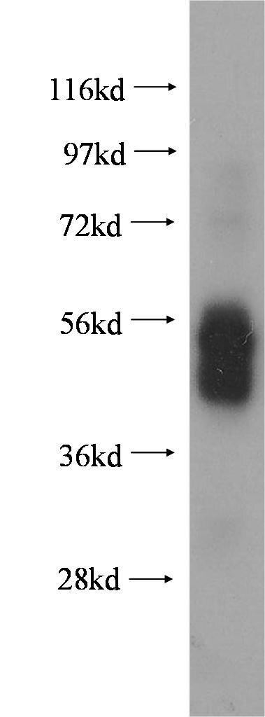 WB analysis of human spleen using 10980-1-AP