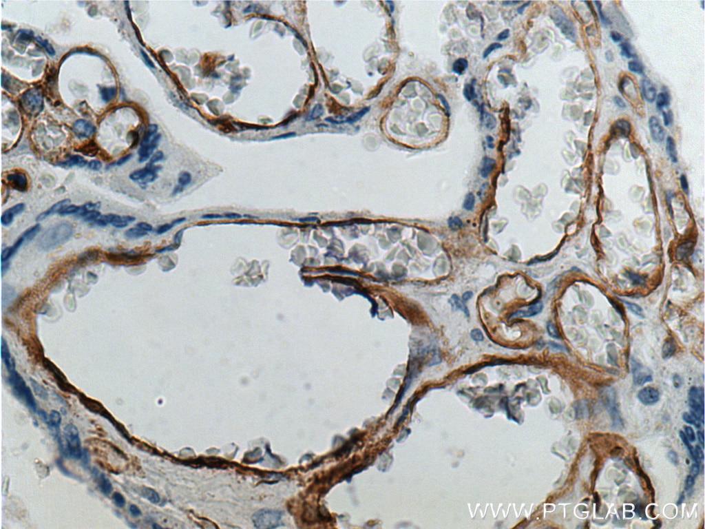 IHC staining of human placenta using 21541-1-AP