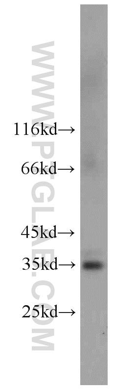 FcRn-Specific Polyclonal antibody