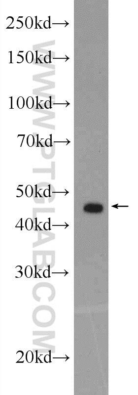 WB analysis of K-562 using 14466-1-AP