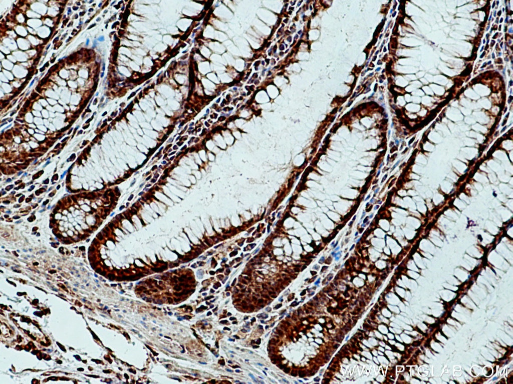 IHC staining of human colon cancer using 28194-1-AP