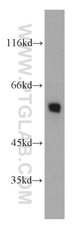 Fibrinogen Beta Chain