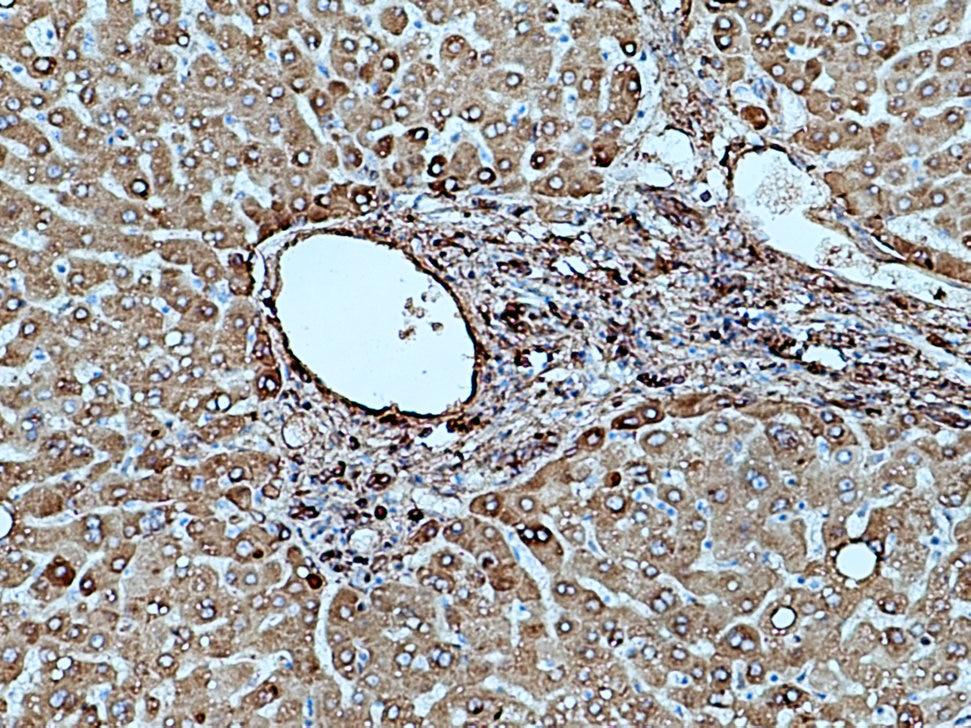 IHC staining of human hepatocirrhosis using 15841-1-AP
