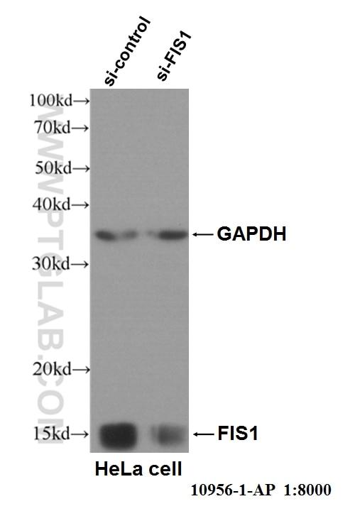 WB analysis of HeLa cells using 10956-1-AP