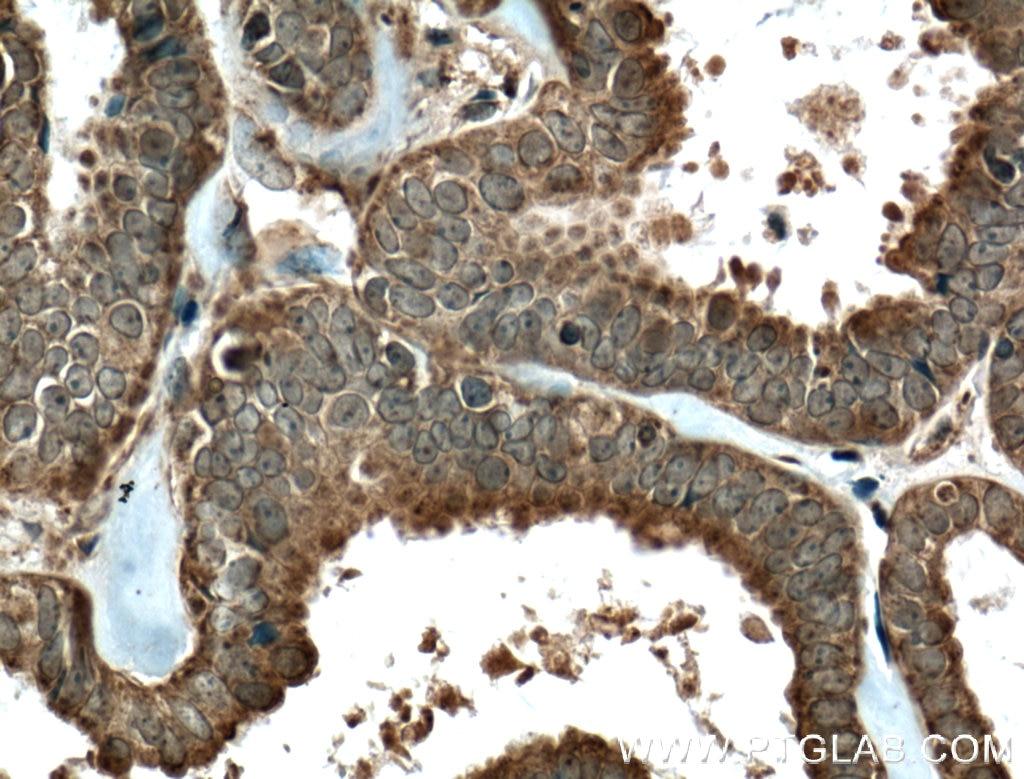 IHC staining of human ovary tumor using 23369-1-AP